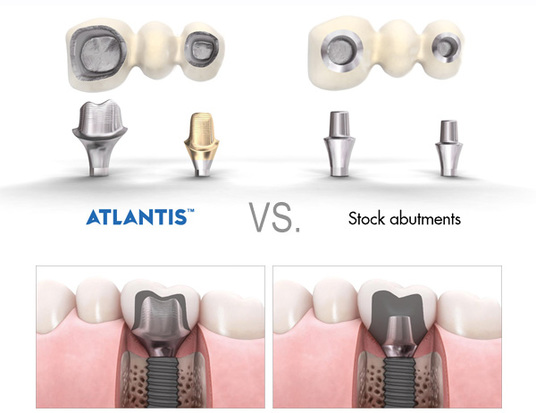 custom abutment vs stock