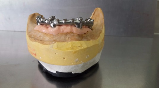 implant retained cad/cam bar