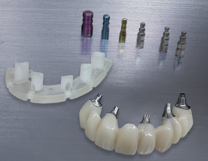 implants @ Dundee dental